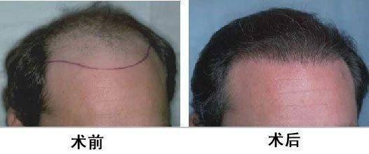 做FUT种植头发费用大概需要多少