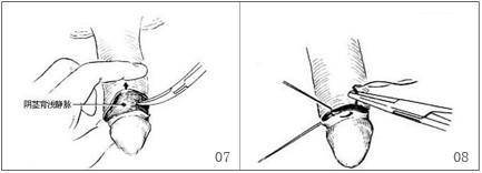 做背侧切口法治疗包茎费用大概需要多少
