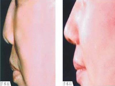做鼻尖缺损修复费用大概需要多少
