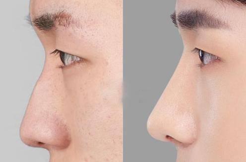 做鼻尖缺损修复价格贵不贵