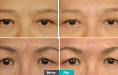做玻尿酸去眉间纹价格要多少
