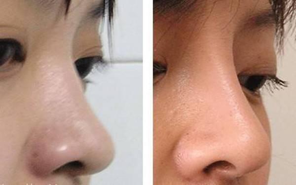 做假体隆鼻副作用是什么