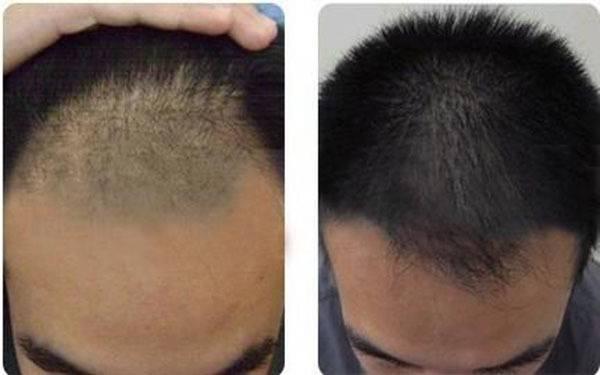 做秃顶植发价格贵吗