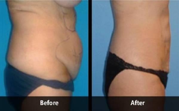 射频溶脂瘦肚子麻醉方式是什么?