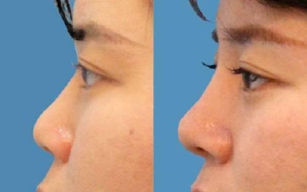 短鼻矫正麻醉方式是什么?