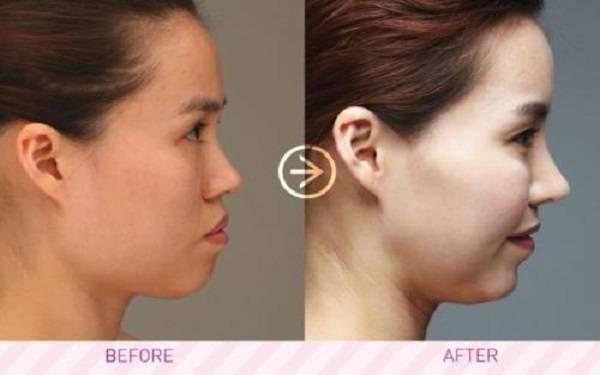 隆鼻改善短鼻麻醉方式是什么?