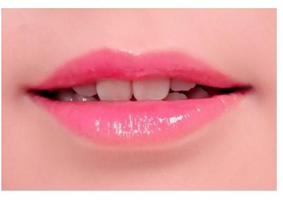 做微笑唇整形有哪些风险