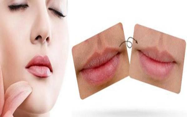 做脱唇毛副作用