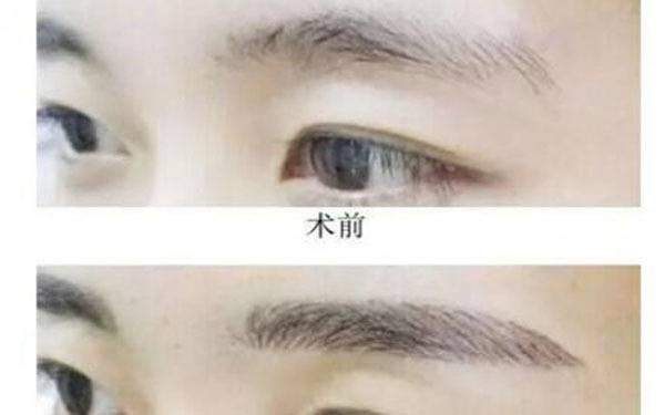 做隆眉弓副作用