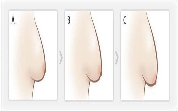 做悬吊法矫正乳房下垂副作用