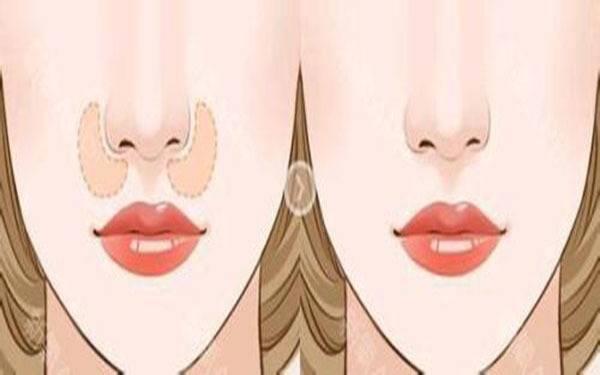 做膨体垫鼻基底副作用