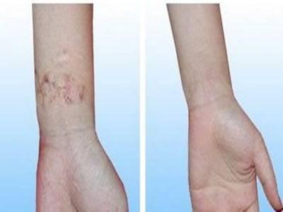 做烧伤疤痕修复有哪些风险