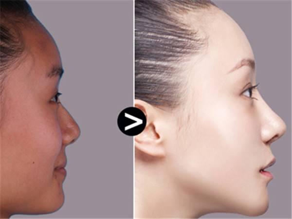 做隆鼻风险是什么
