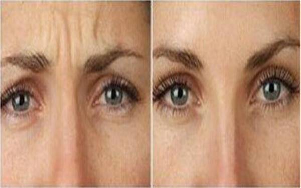 做玻尿酸去眉间纹副作用是什么