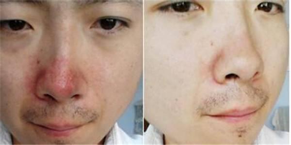 做光子治疗酒糟鼻风险是什么
