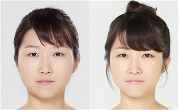 做光纤溶脂瘦脸风险是什么
