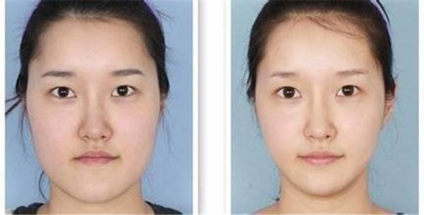 做磨骨瘦脸风险是什么