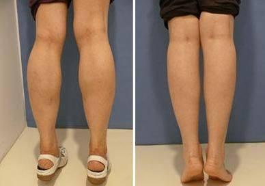 做肉毒素瘦小腿风险有哪些