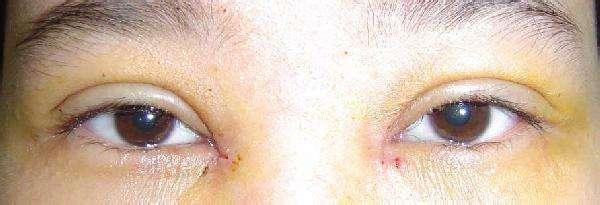 做微晶磨皮去眼角细纹效果怎么样