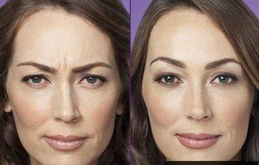 做玻尿酸去眉间纹效果怎么样