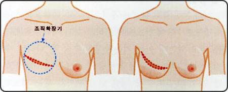 做乳房再造效果怎么样