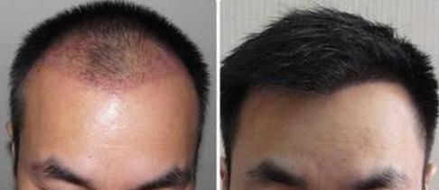 做FUE种植头发费用要多少