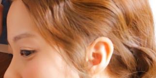 杯状耳矫正做完要多久时间?