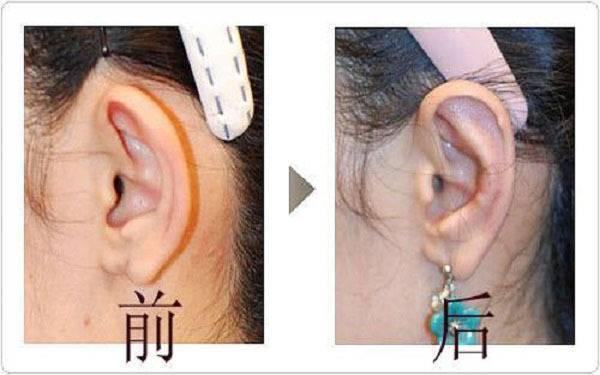 杯狀耳矯正適應癥狀是什么?