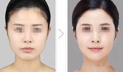 做溶脂瘦脸副作用是什么