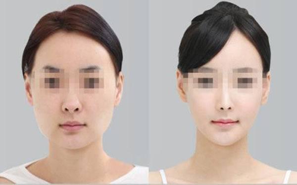 做下颌角截骨副作用是什么