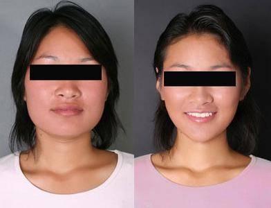 做颊脂肪垫切除瘦脸副作用是什么