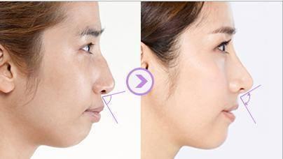 做凸嘴矫正副作用是什么