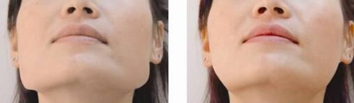 做下颌角磨骨副作用是什么
