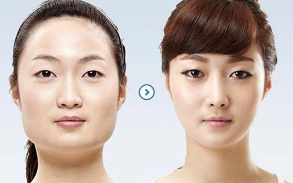 做国字脸整形副作用是什么