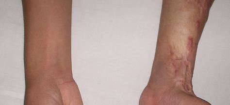 烫伤疤痕修复适应症状是什么?