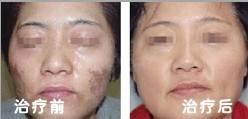 微晶磨削去抬头纹适应症状是什么?