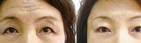 爱贝芙去除抬头纹适应症状是什么?