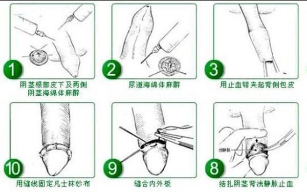做包茎效果如何