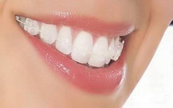 做地包牙矫正效果如何
