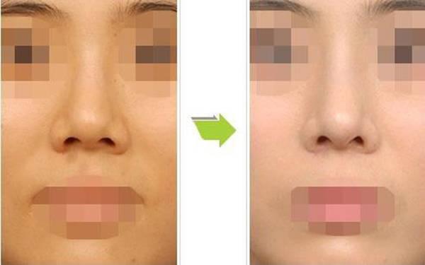 做短鼻矫正效果如何