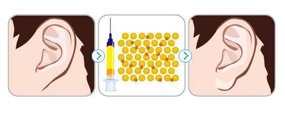 做玻尿酸丰耳垂护理方法