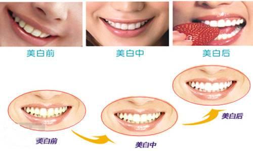 做洗牙护理方法