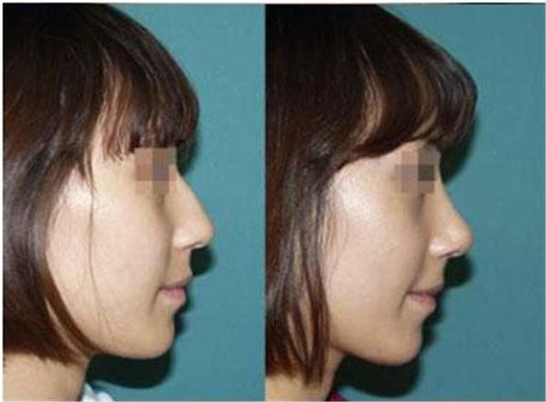 做膨体垫鼻基底会有疤痕吗