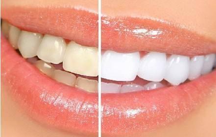 做牙齿抛光注意事项是什么