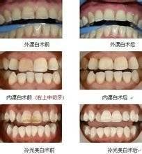 做牙齿漂白注意事项是什么