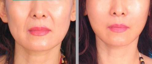 做自体脂肪填充鼻唇沟风险有哪些