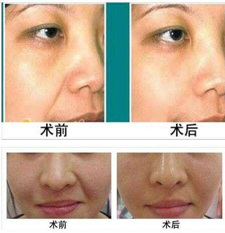 做玻尿酸填充鼻唇沟风险有哪些