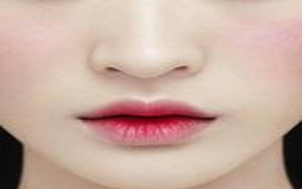 重唇矫正属于哪种类型?