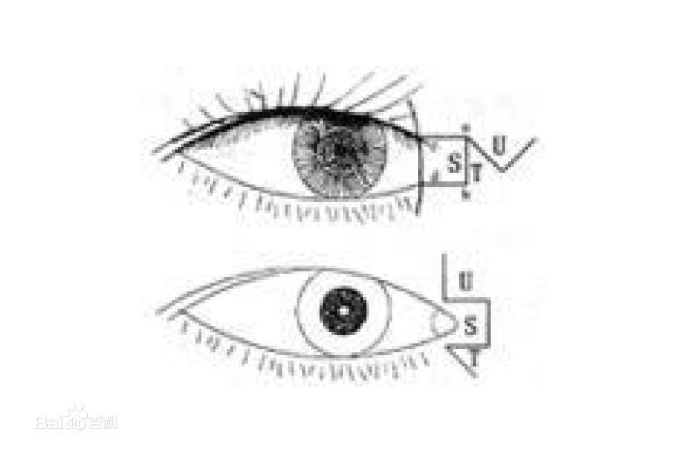 做开内眼角手术有没有并发症?