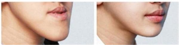 做颌骨矫正失败修复护理方法